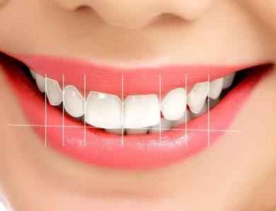Gömülü Diş Tedavisi